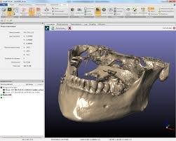 3d Medical Software 3d Image Processing And Segmentation Software From Simpleware