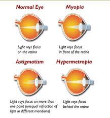 light streaks after cataract surgery refractive errors dr bruce c henderson