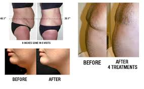 lipo light laser treatment reviews body sculpting with led mylipo all hours indoor tanning distributor