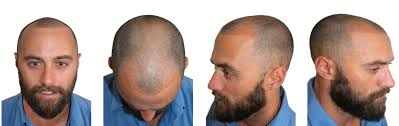 how thick is 1000 hair graft fue hair transplant surgeon melbourne dr m alam