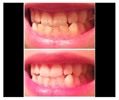 pro light dental whitening system reviews luster pro light dental whitening system review best teeth products