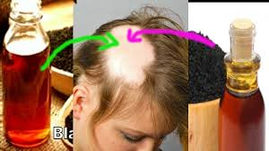 kalonji for hair growth how to use kalonji black seed oil for hair growth and baldness