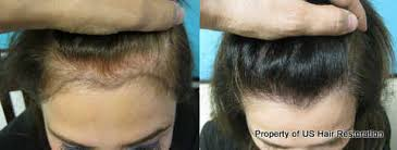 womans hair thinning on sides us hair transplant blog archive women hair loss treatments