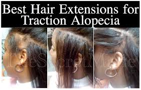 hair extensions for thinning hair