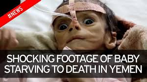 Starving Child Meme - heartbreaking footage of starving baby exposes the human tragedy of