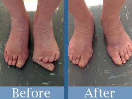 Comfortable Shoes After Foot Surgery Bunion Surgery Bloomington In Kevin J Powers Dpm