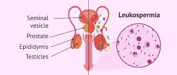 stress pattern sperm adalah leukocytospermia or pyospermia symptoms causes treatment