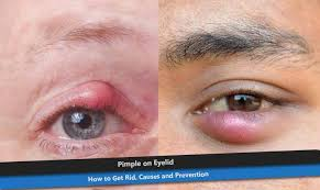 Causes Of Blind Pimples Pimple On Eyelid How To Get Rid Causes And Prevention