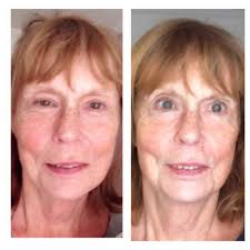 nuface trinity red light reviews microcurrent facelift and the eyes what you can expect after a