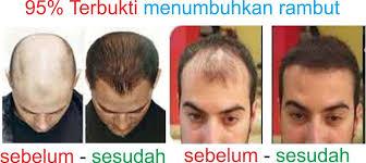 membuat minyak kemiri untuk rambut botak jual obat penumbuh rambut botak minyak kemiri kirei monti indah