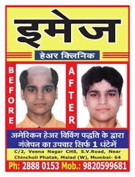 hair bonding image hair clinic mumbai hair weaving expert health beauty