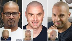 pics of scalp micropigmentation on people with long hair frequently asked questions head tattoos faq skalp