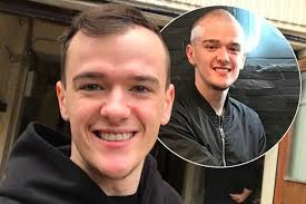 paddy mcguinness hair transplant britain s got talent star george sson 23 shares picture of
