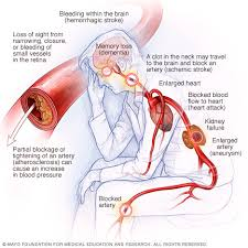 Picture Human Body High Blood Pressure Dangers Hypertension U0027s Effects On Your Body
