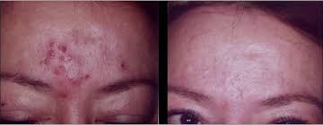 light treatment for skin see which laser or light treatment is right for your skin