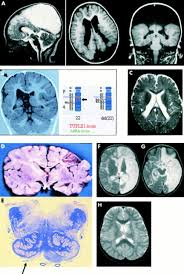 the cerebral palsies a physiological approach journal of
