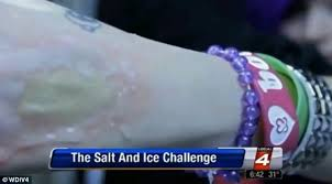 Water Challenge Dangerous Teenagers Burn Themselves With Salt And In Dangerous New Craze