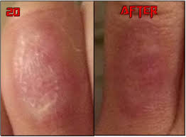 natural tattoo removal chemical peels tattoo removal before u0026 after