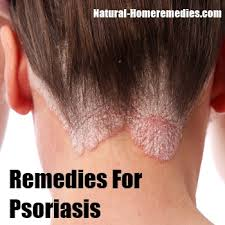 sun ls for psoriasis for sale home remedies for psoriasis treatment cure natural remedy for