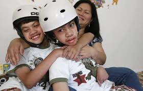 Seeking Conjoined Once Conjoined Separate Lives 10 Years After Surgery