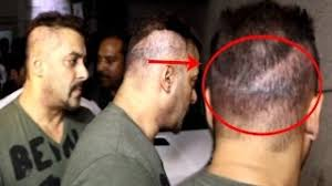 ranbir kapoor hair transplant watch what went wrong with marco rubio 039 s cai video id