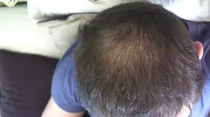 Azelaic Acid Hair Loss Should I Give Up On Expecting Regrowth Very Close Up Pic Of