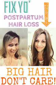 pictures of short hair do s back dise and front views best 25 postpartum hair loss ideas on pinterest young living