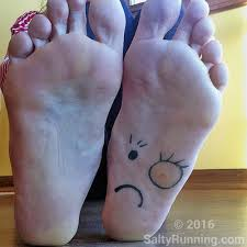 How Do You Get Planters Warts by Plantar Warts And Running U2013 Salty Running