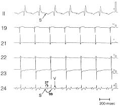 linear ablation of the isthmus between the inferior vena cava and