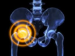 what your hip may be telling you health enews