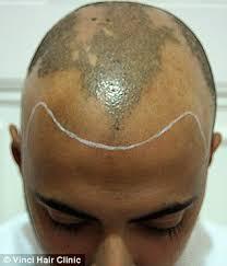 bald men turn to hair tattoos to creates the illusion of short
