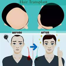 transplant hair second round draft what is a hair transplant quora
