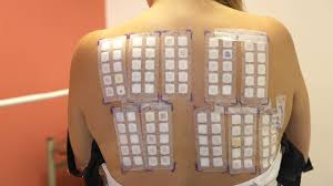 nickel allergy testing patch testing with a large series of metal allergens