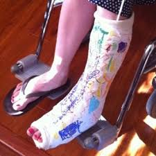 Comfortable Shoes After Foot Surgery How To Survive A Broken Foot