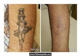 does tattoo removal cream really work best tatto 2017