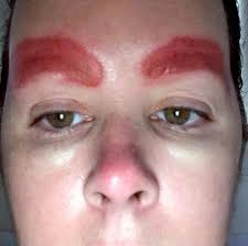 Red Flaky Skin Around Nose And Eyebrows Traumatised Mum Claims A 30 Minute Eyebrow Tattoo Procedure Left