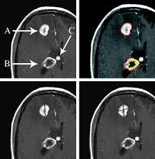 brain tumor imaging in clinical trials american journal of