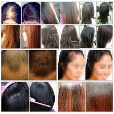 aliexpress com buy andrea hair growth essence hair loss liquid