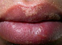 Causes Of Blind Pimples Pimples On Chin Causes Under Chin Hard Painful Get Rid Of Small