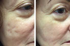 new acne scar filler topical fillers for acne scars no needles