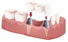 Bridge Dental Cost Estimate by Is A Dental Bridge Right For You Information On Types Costs And More