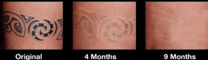 laser tattoo removal cost aftercare inofashionstyle com
