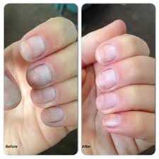 get whiter nails beauty and fitness now