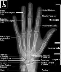 Xray Meme - anatomy of rt hand rt hands meme on me tweetboard