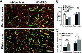 erythropoietin promotes neuronal replacement through