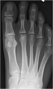 Avascular Necrosis Of The Metatarsal Head Bone Infarct And Osteochondrosis Radiology Key