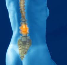 fußheberschwäche nerv bandscheibenvorfall symptome behandlung news welt