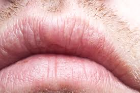 Chapped Lips Meme - chapped lips cold sores the art of beauty