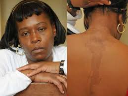 hair braiding places in harlem women sue over burns from beauty shops ny daily news