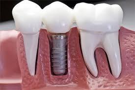 Comfort Dental Las Vegas Best Las Vegas Dentist Affordable Emergency Dentistry 89146